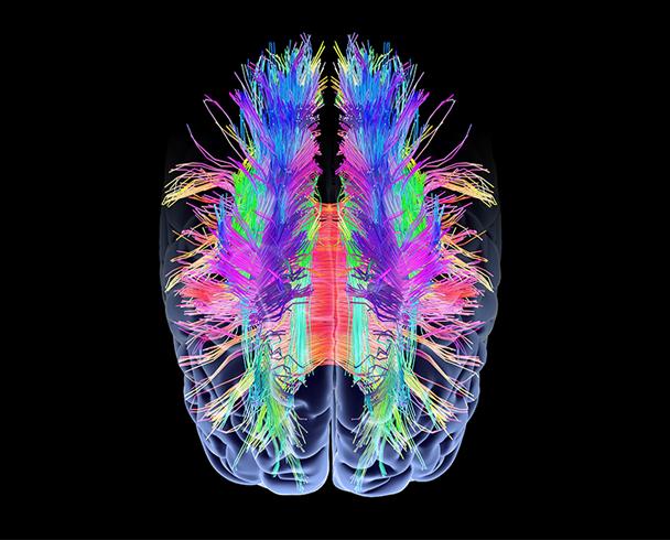 Science Behind the BrainHealth® App - Center for BrainHealth